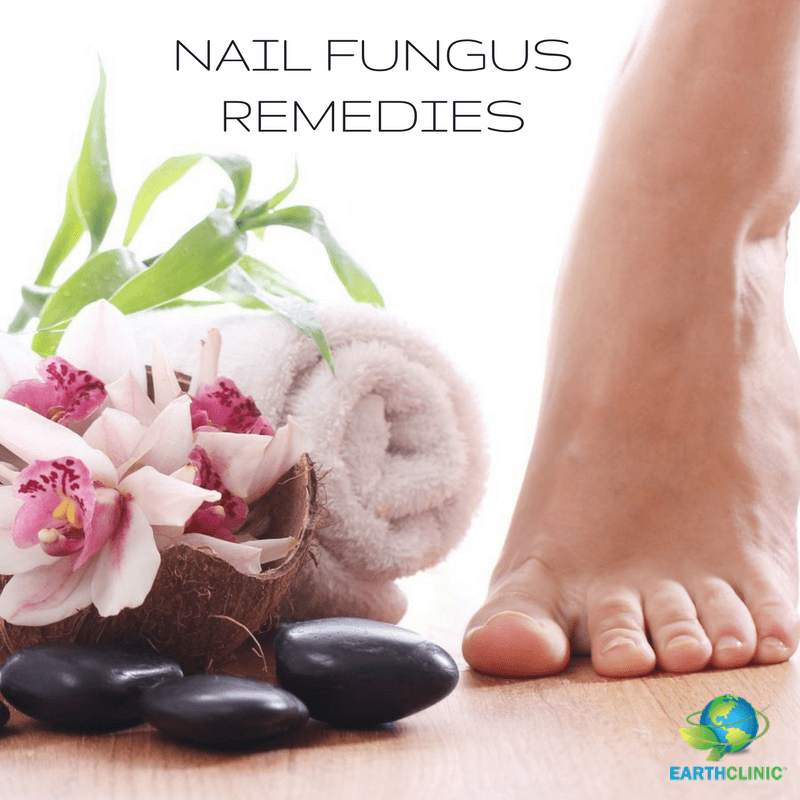 NaIl Fungus Natural Remedies