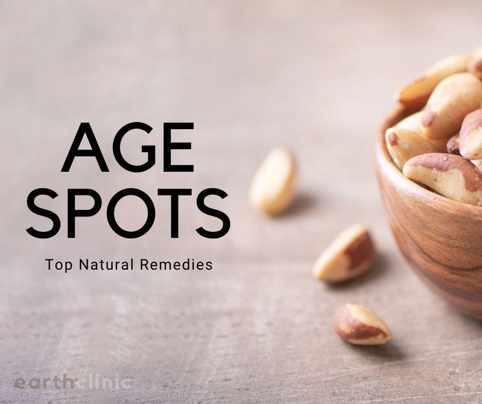 Age Spot Remedies