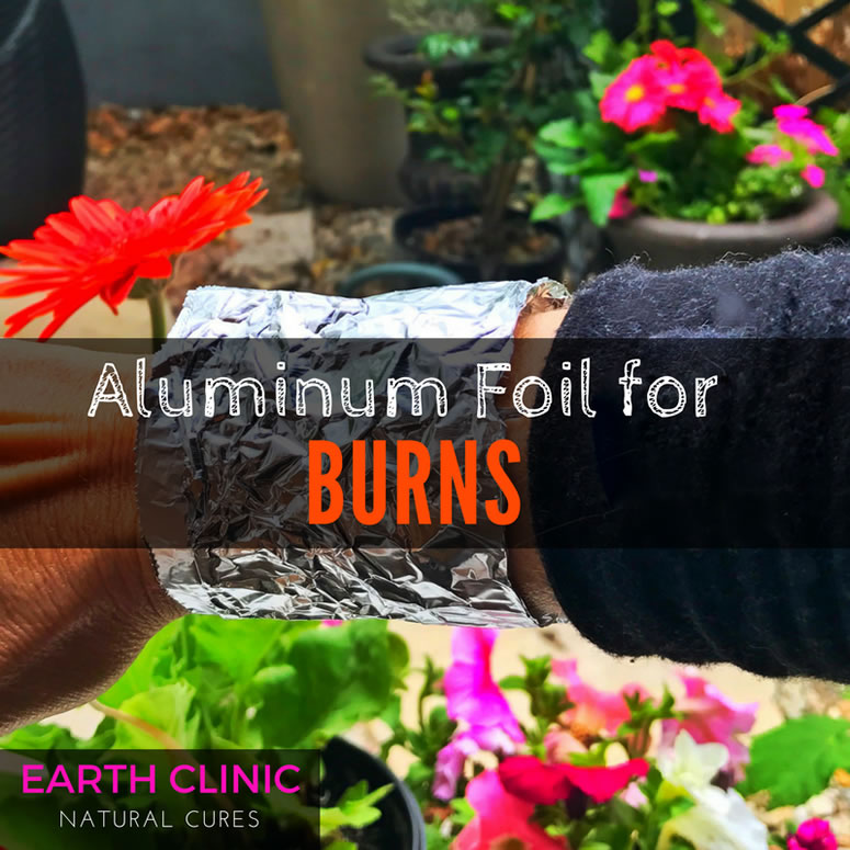Aluminum Foil for Burns