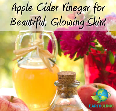 Apple Cider Vinegar for Beautiful Skin