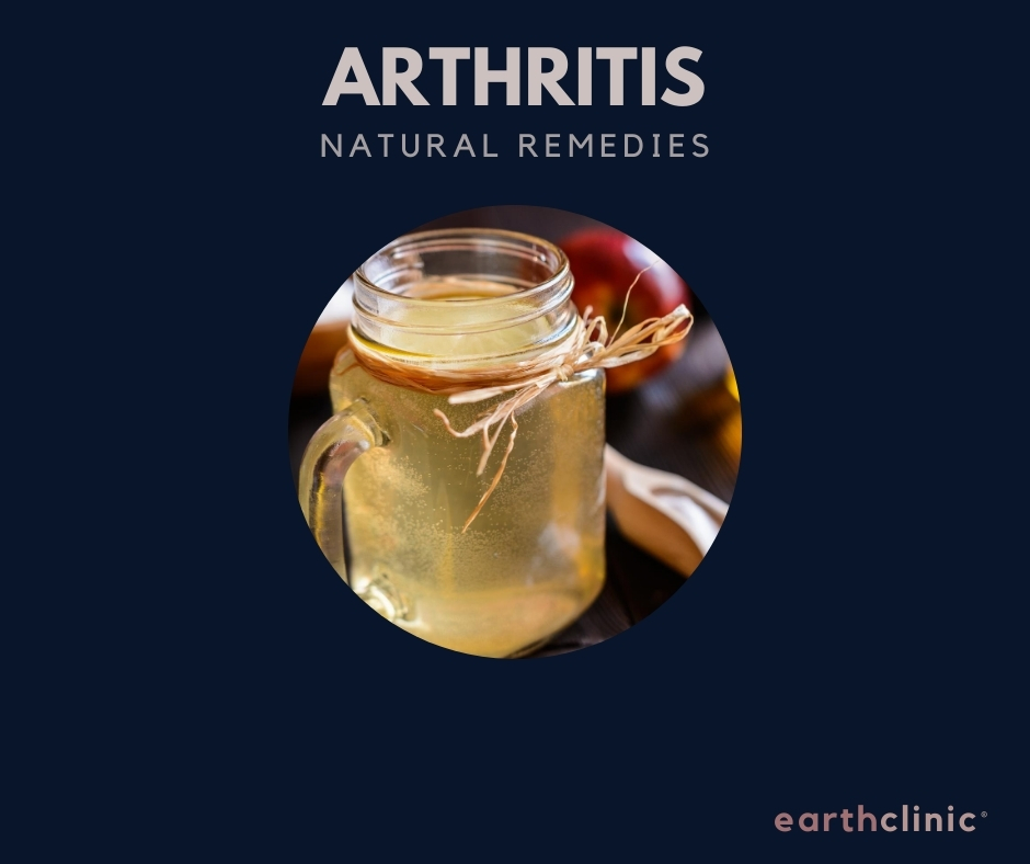 Natural remedies for arthritis on Earth Clinic.