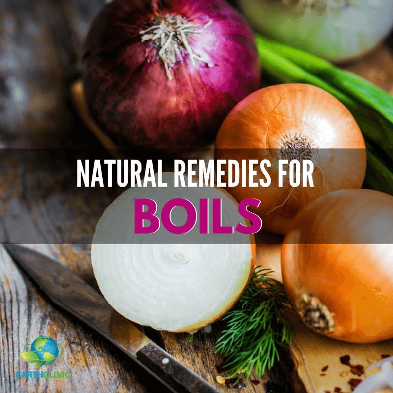 Boil Natural Remedies