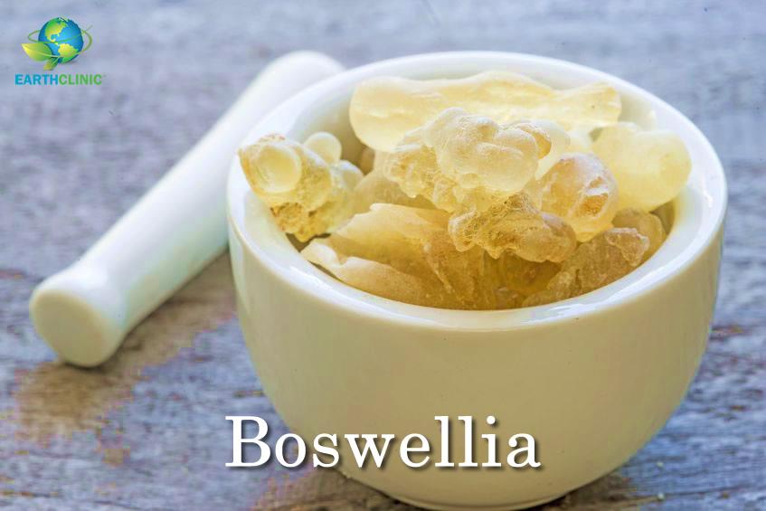 Boswellia's Amazing Health Benefits