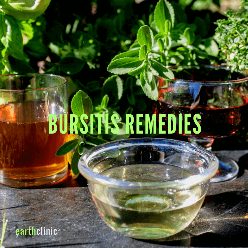 Natural Remedies for Bursitis