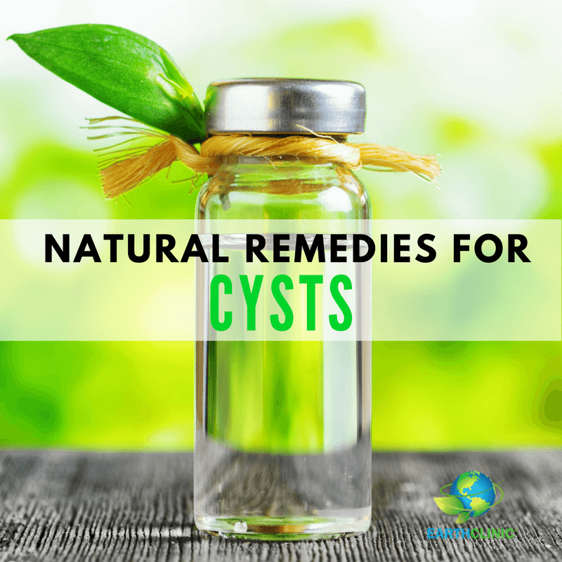 Cyst Natural Remedies