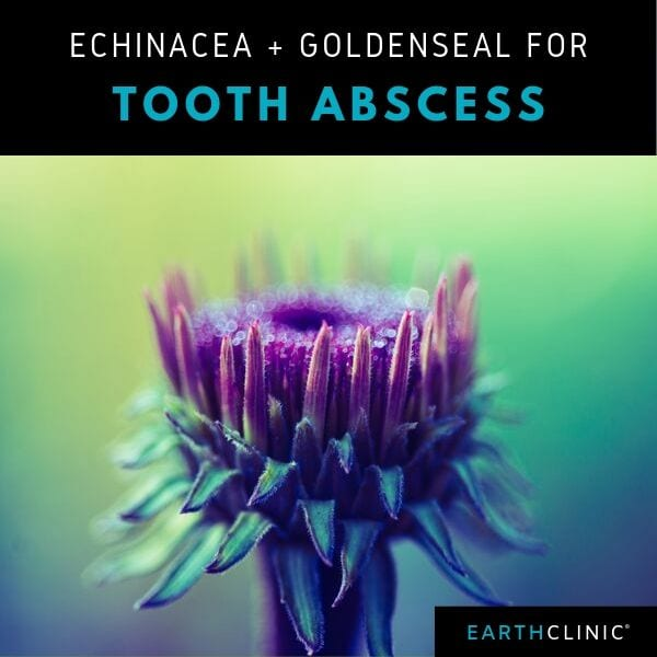 Echinacea and Goldenseal for Tooth Abscess.