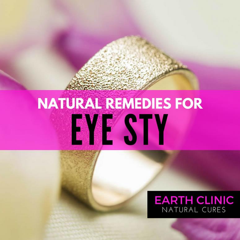 Eye Sty Natural Remedies