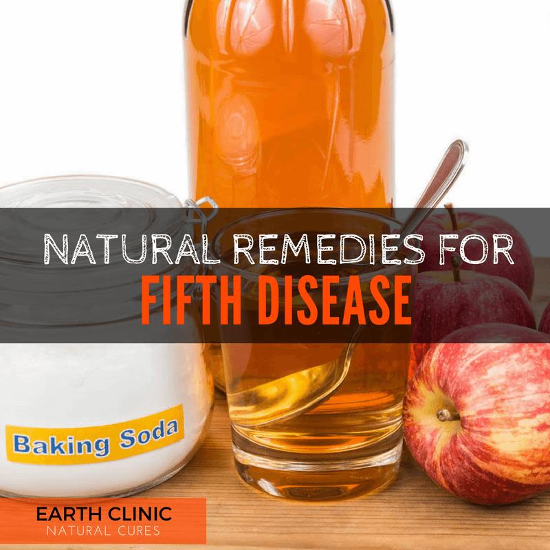 Fifth Disease Remedies