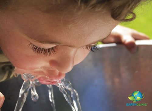 Fluoride Poisoning From Drinking Water