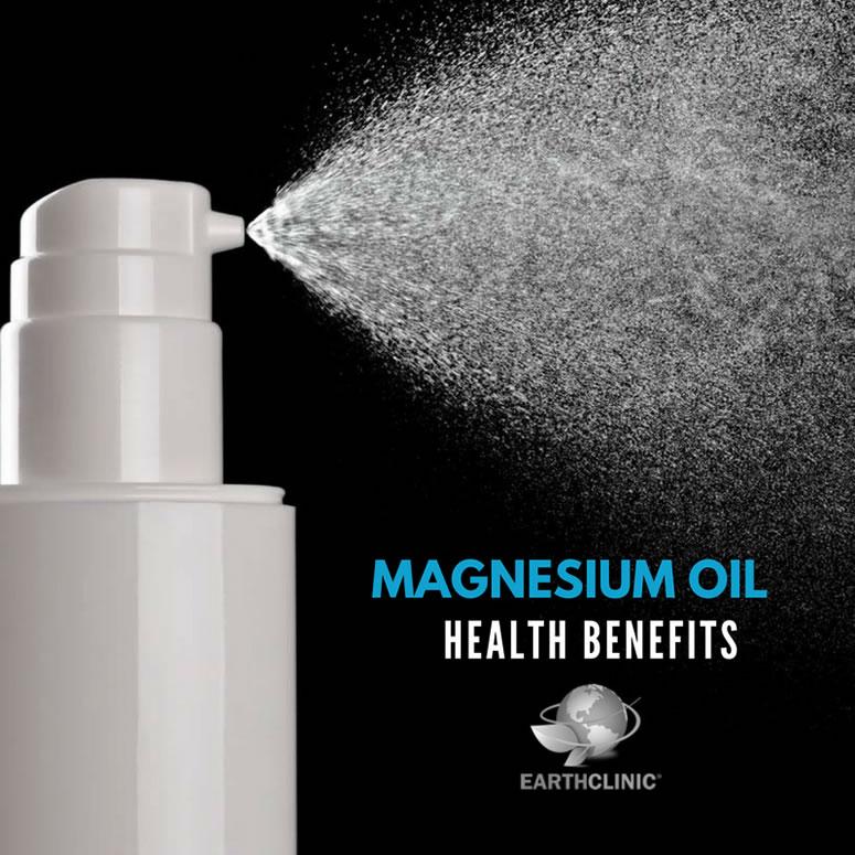 Magnesium Oil Health Benefits