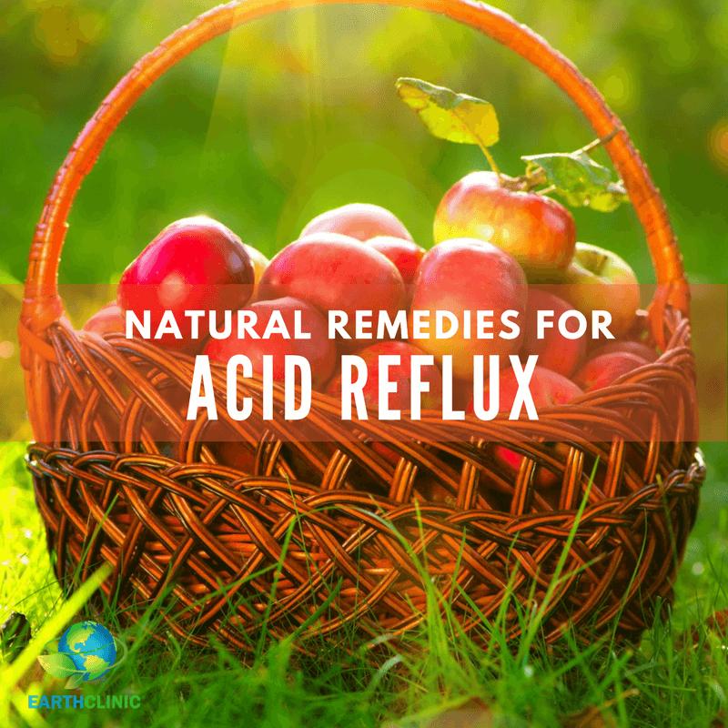 Acid Reflux Natural Remedies