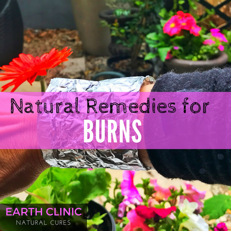 Natural Remedies for Burns