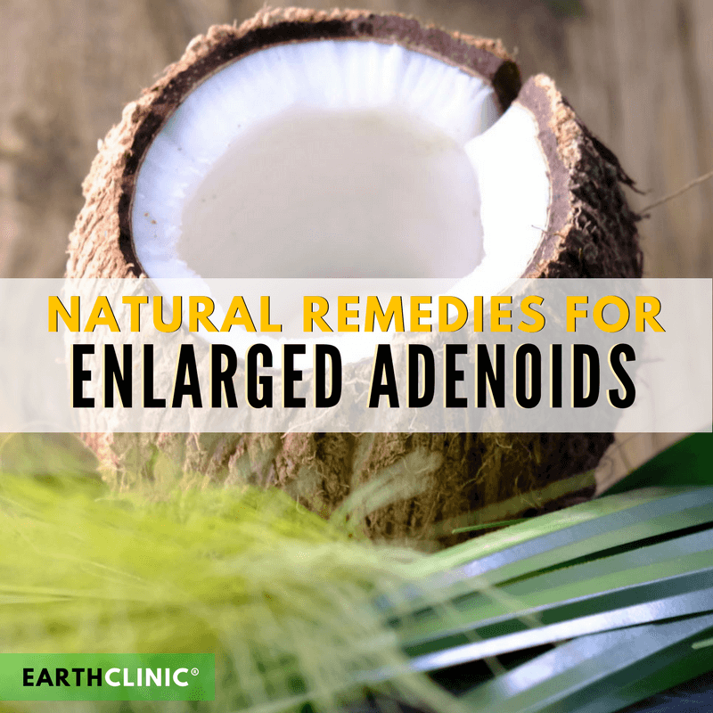Enlarged Adenoids Natural Remedies