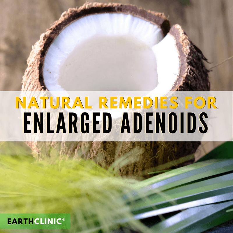 Enlarged Adenoids Natural Remedies