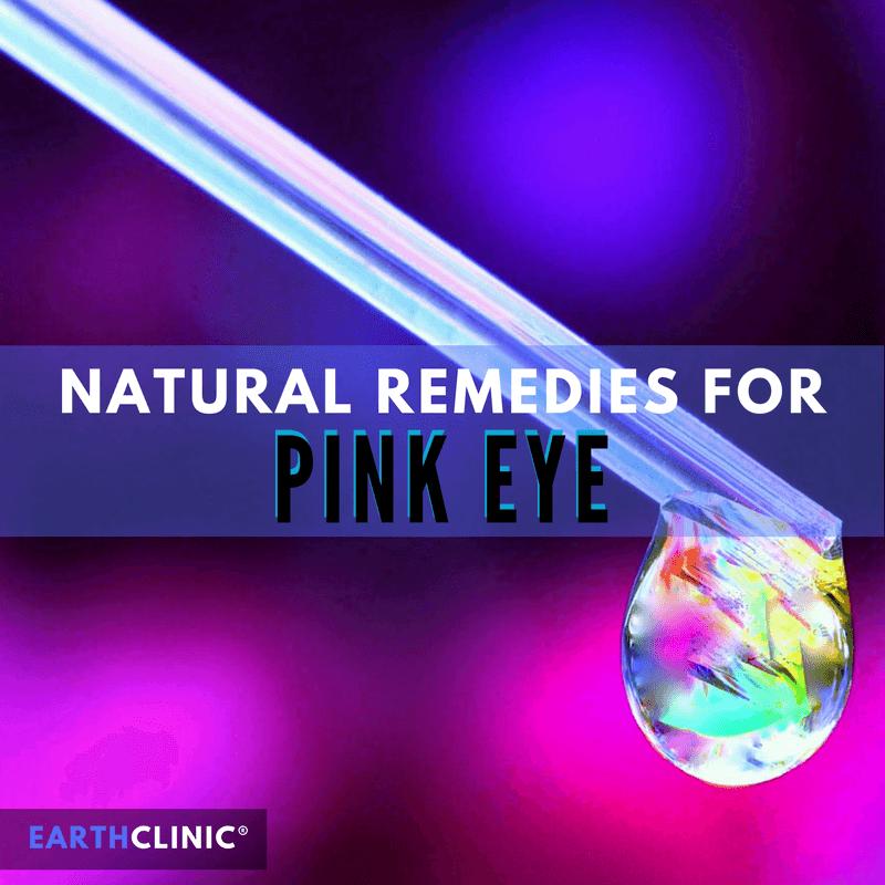 Pink Eye Natural Remedies