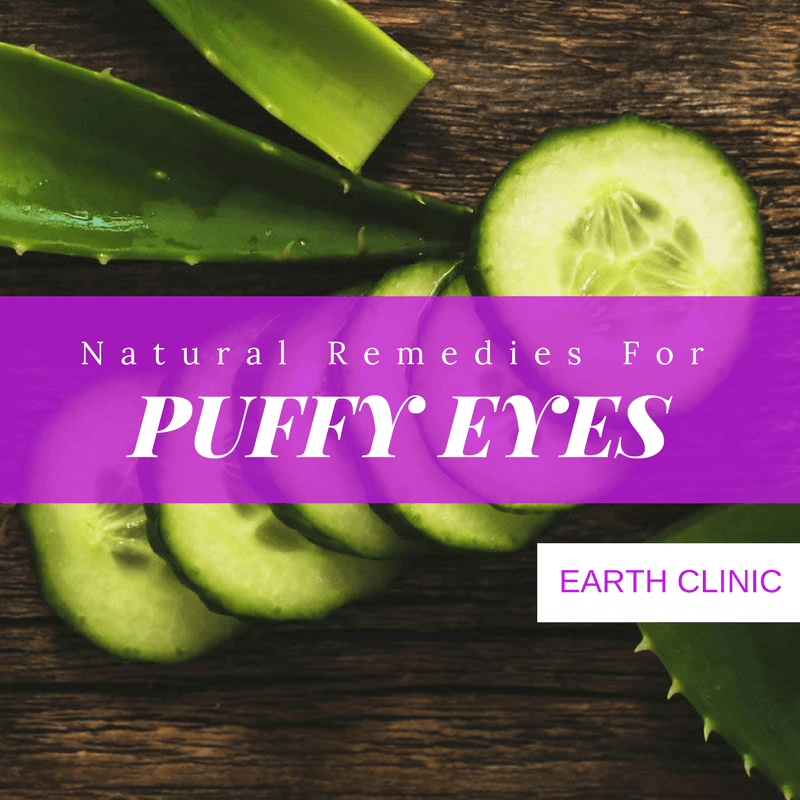 Puffy Eye Natural Remedies