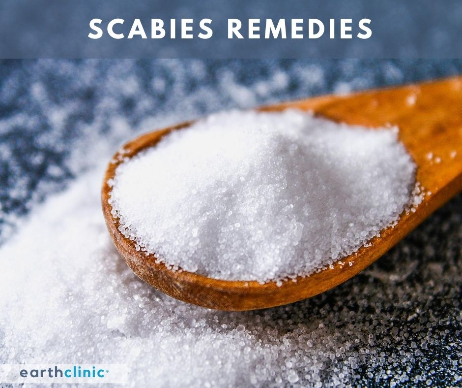 Scabies Remedies on Earth Clinic.