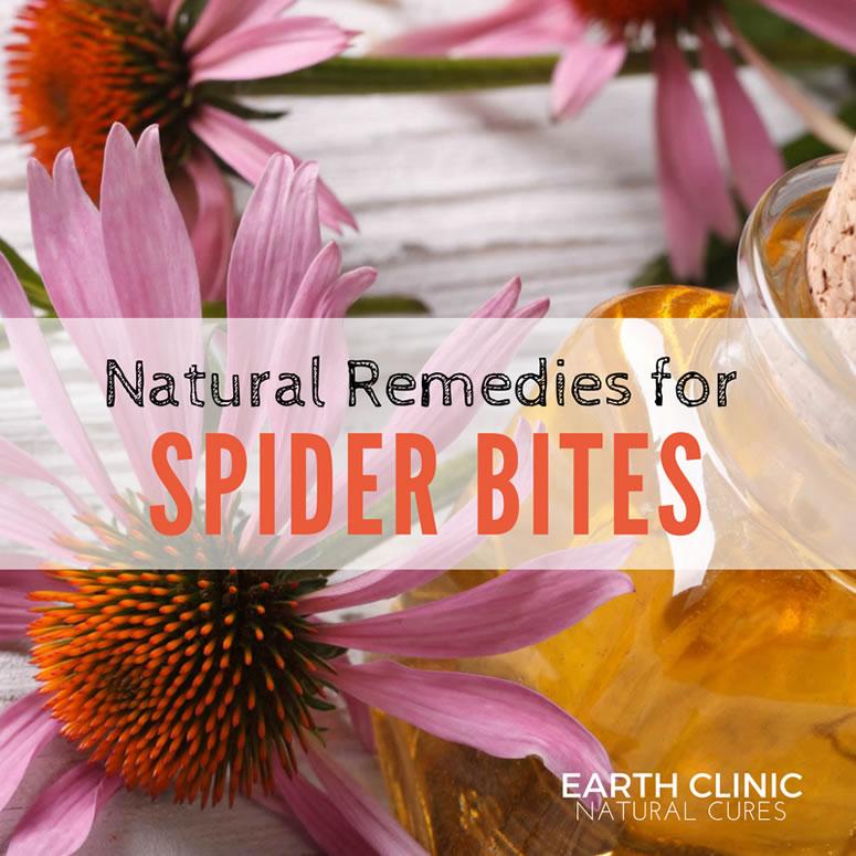 Spider Bite Natural Remedies