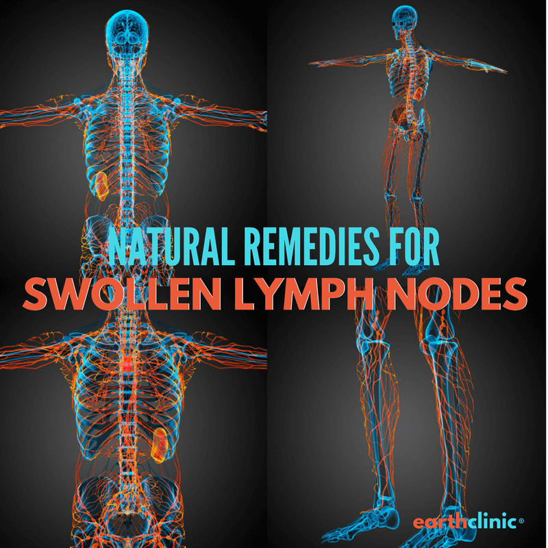 natural remedies for swollen lymph nodes under jaw