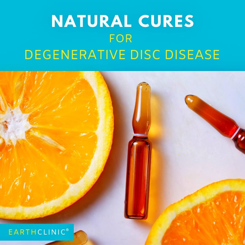 Top Natural Cures for Degenerative Disc Disease