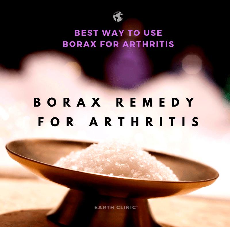 borax for arthritis - earth clinic