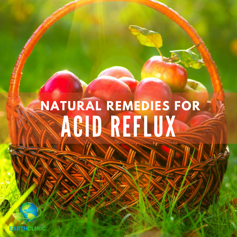 Acid Reflux Natural Remedies