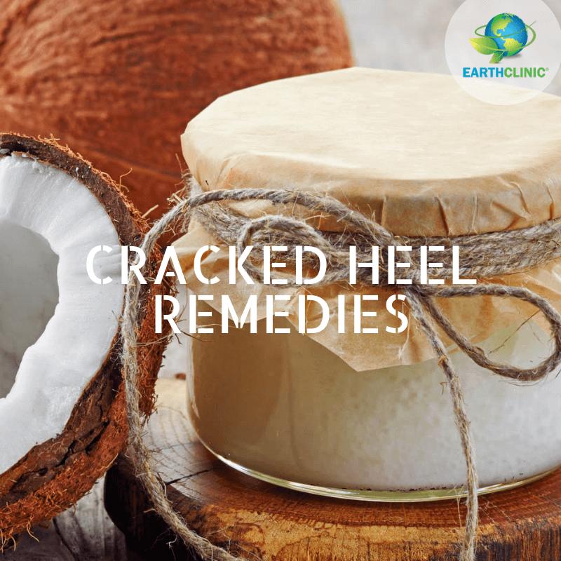 cracked heel remedies