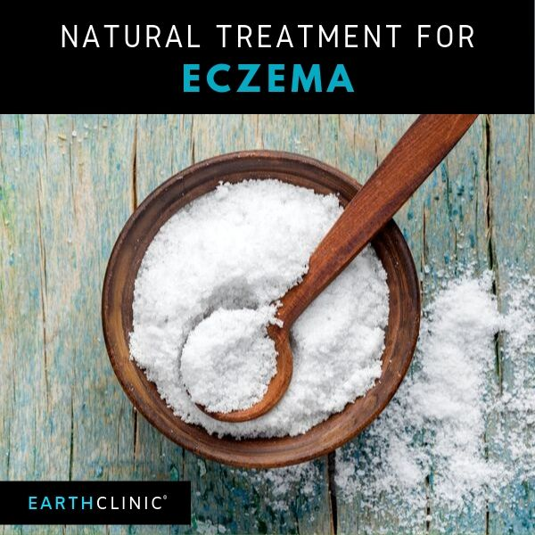 Natural eczema treatments on Earth Clinic.