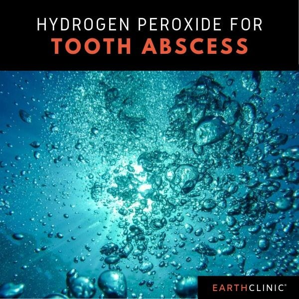 Hydrogen peroxide for tooth abscess.