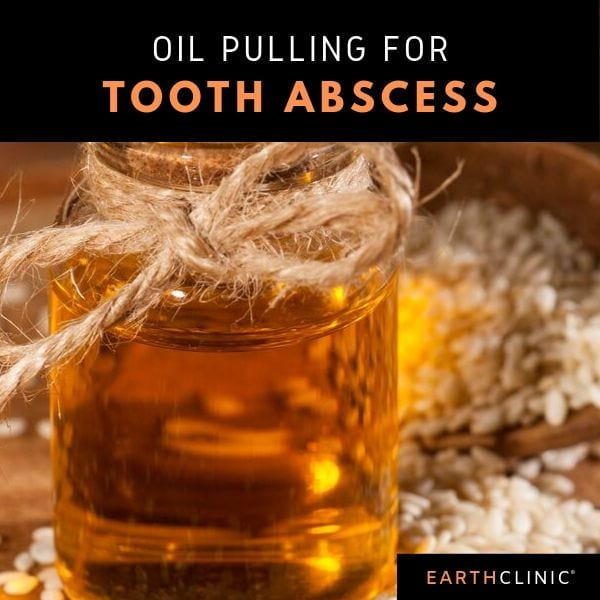 Oil Pulling for Tooth Abscess.