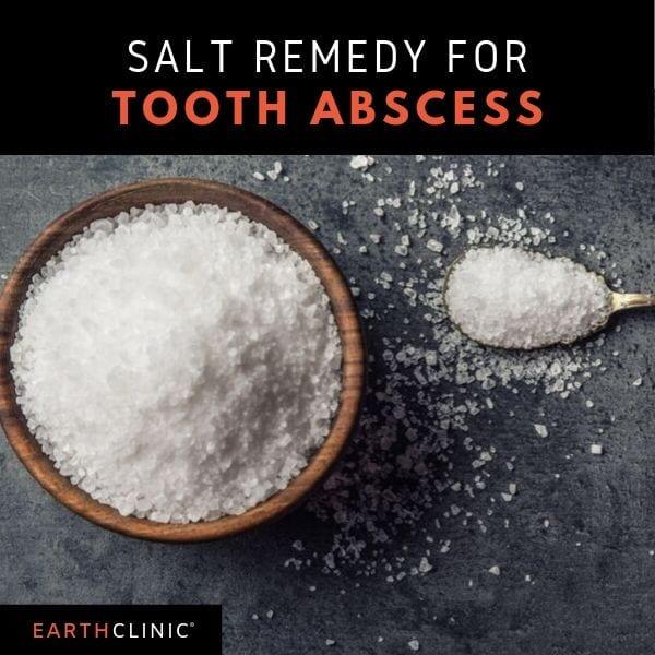 Salt remedy for a tooth abscess,
