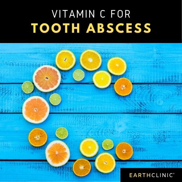 Vitamin c for tooth abscess