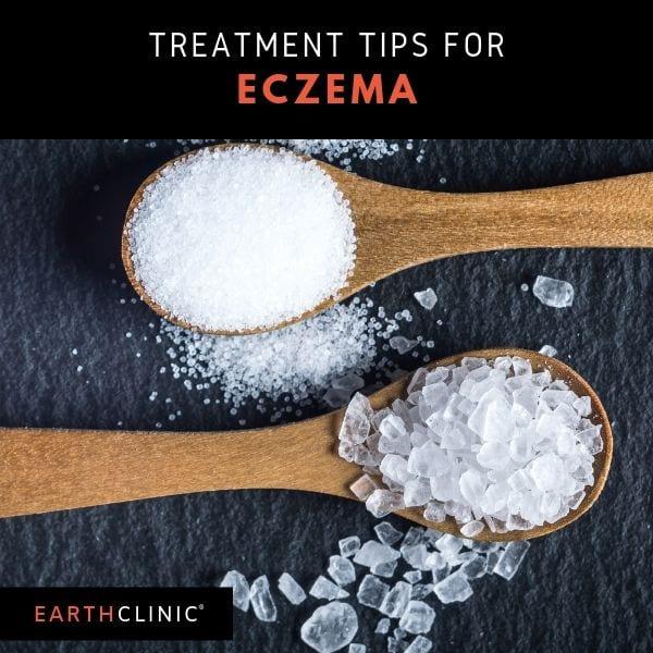 Borax treatment tips from Earth Clinic readers.