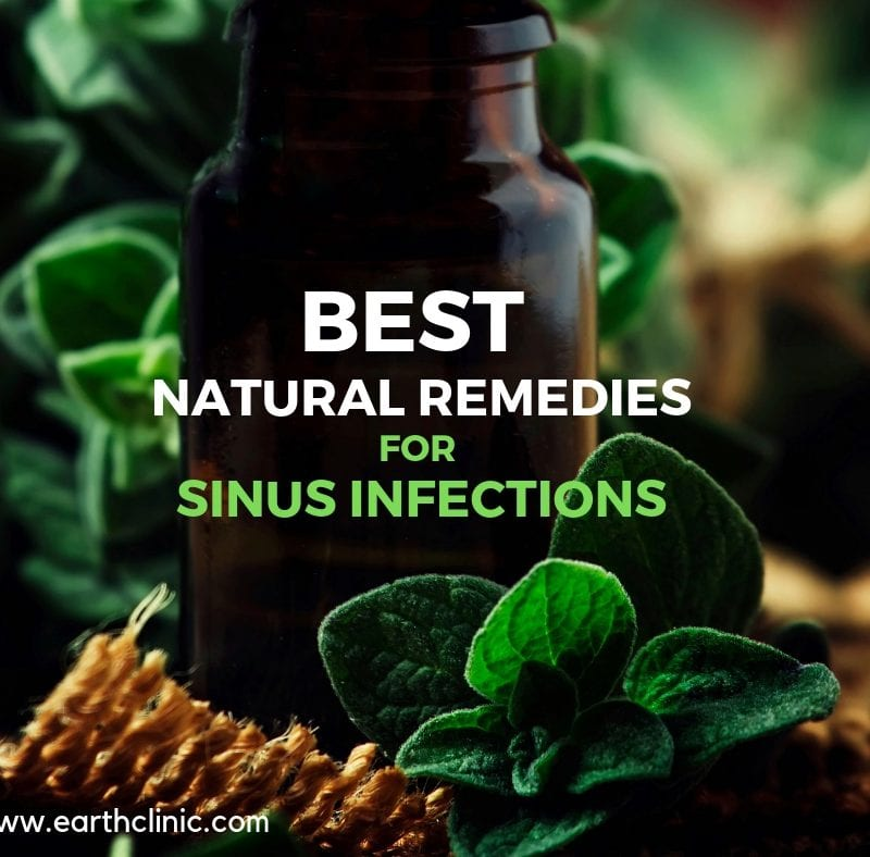 Best natural remedies for sinus infections