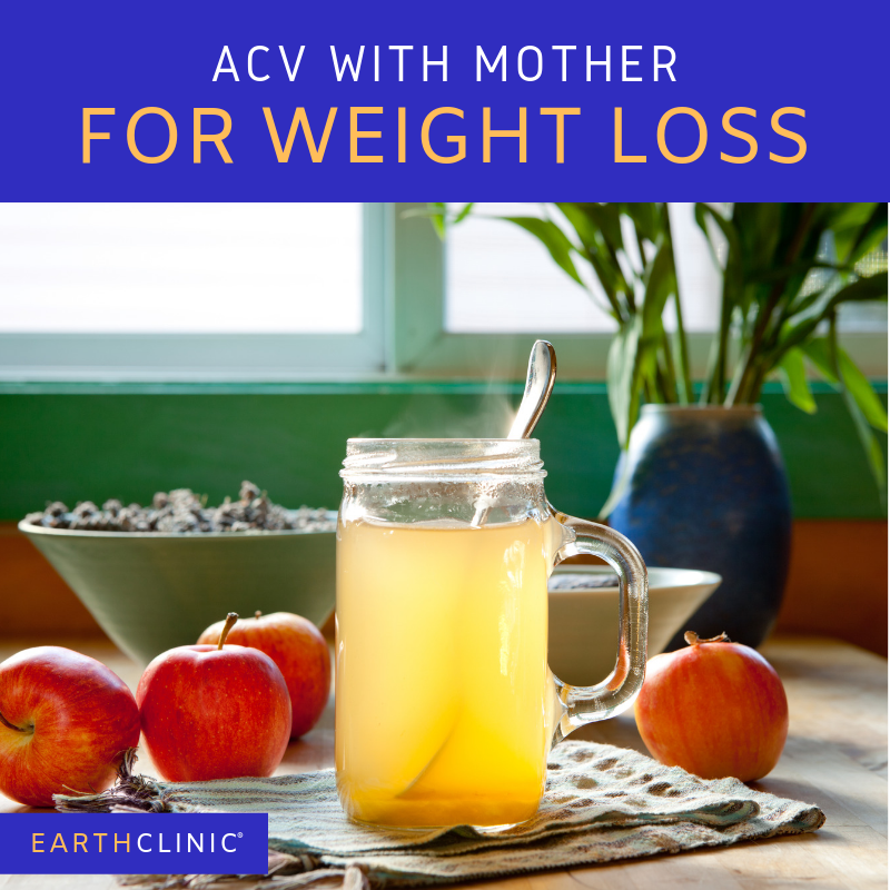 Acv with mother for weight loss instructions and reviews,.