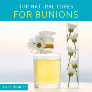 Learn how to get rid of bunions naturally