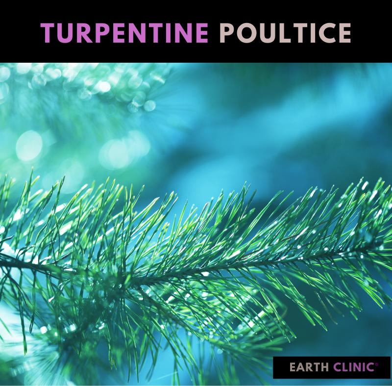 Turpentine Poultice for Coronavirus.
